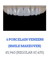 Premium-Item-Smile-Makeover