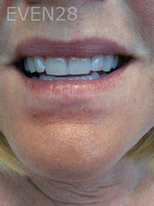 Ali-John-Jazayeri-Teeth-Whitening-before-7