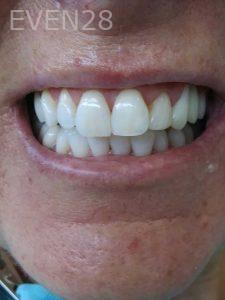Ali-John-Jazayeri-Teeth-Whitening-after-3