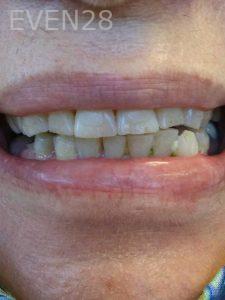 Ali-John-Jazayeri-Teeth-Whitening-before-2