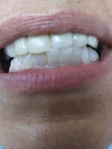 Ali-John-Jazayeri-Teeth-Whitening-after-6