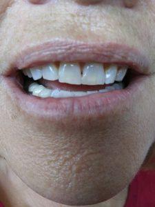Ali-John-Jazayeri-Teeth-Whitening-after-5