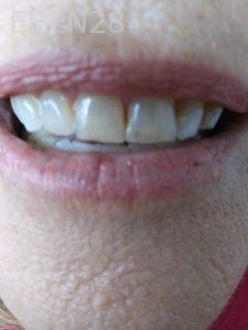Ali-John-Jazayeri-Teeth-Whitening-before-5