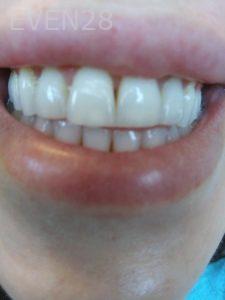 Ali-John-Jazayeri-Teeth-Whitening-before-4