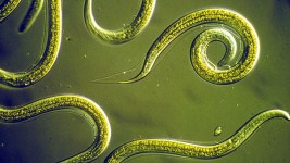 Image: The nematodes in this photo have brains that are being used as part of new innovations in Artificial Intelligence.