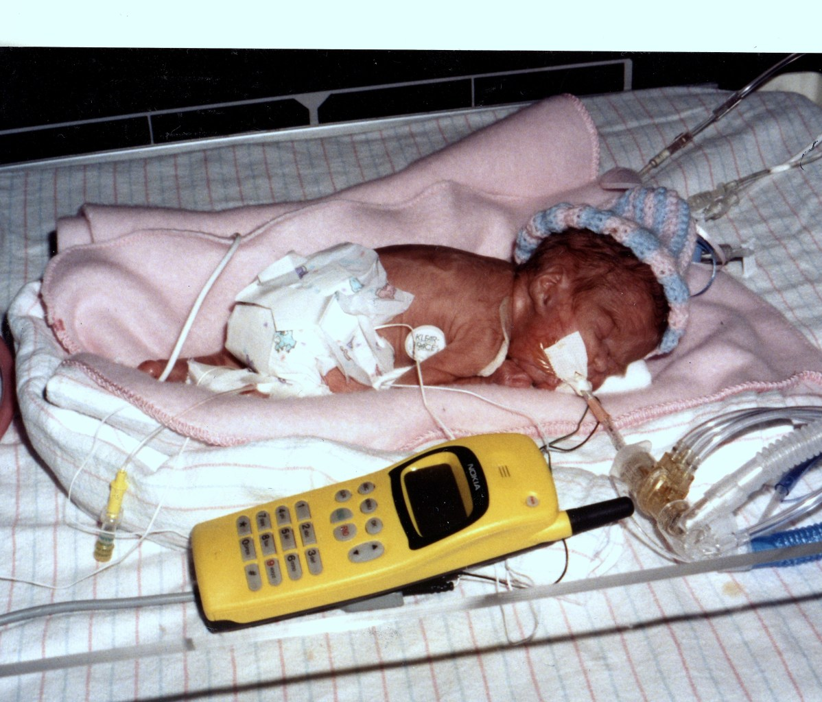 Image: Louisa, micro-preemie, lying next to a cell phone at about the same size