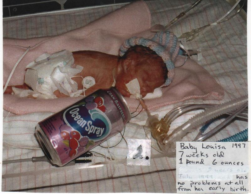 Micro-Preemie Turns 21: A Success Story for Everyone! | EWC
