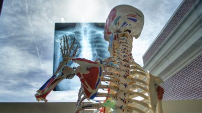 Image: Plastic skeleton holding an X Ray up to a window