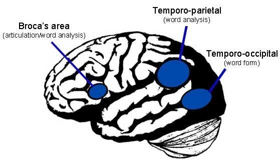 Resultado de imagen de Study Shows Reading Remediation Improves Children's Reading Skills and Positively Alters Brain Tissue