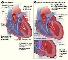 About Congenital Heart Defects
