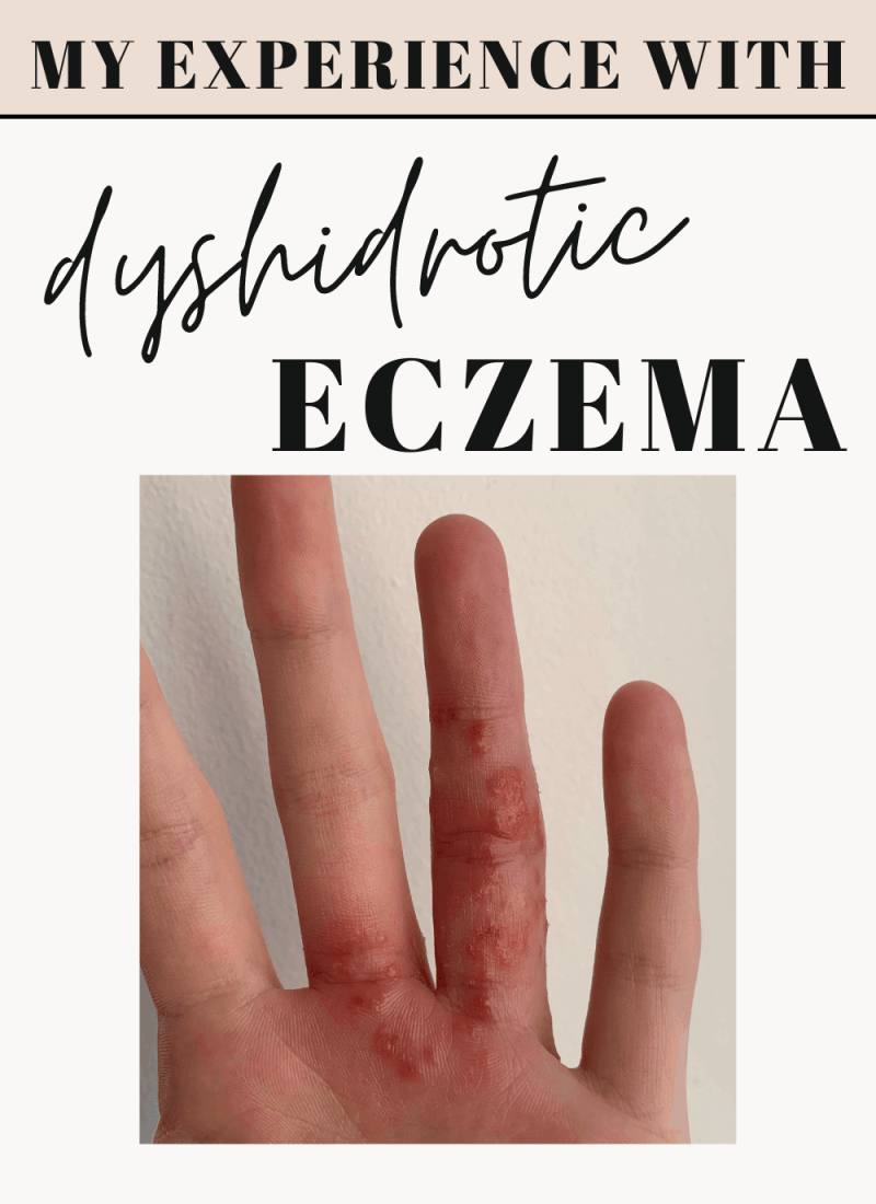 My left finger & palm showing a inflamed flare of Dyshidrotic Eczema