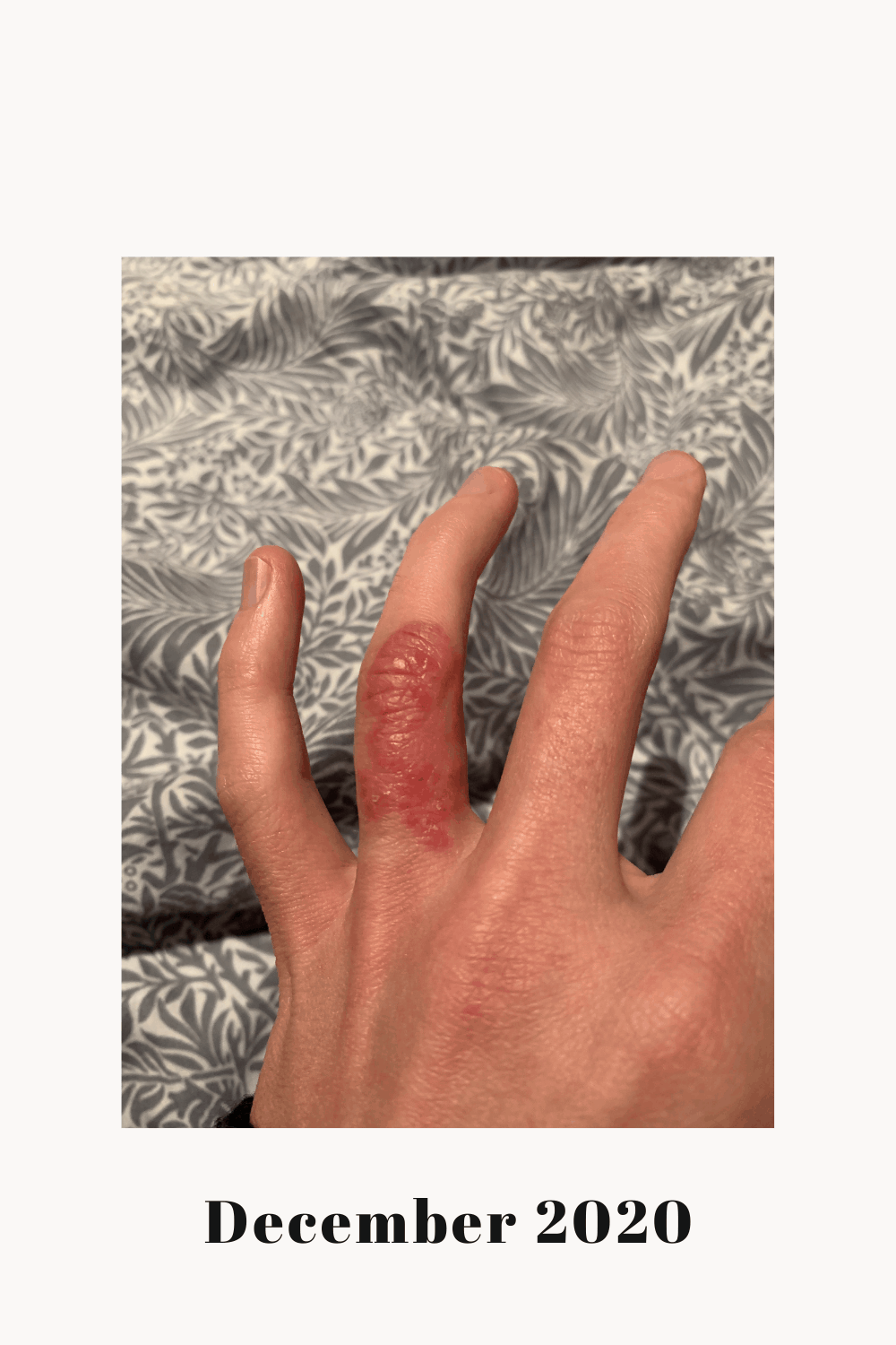 My left ring finger with a Dyshidrotic Eczema flare.