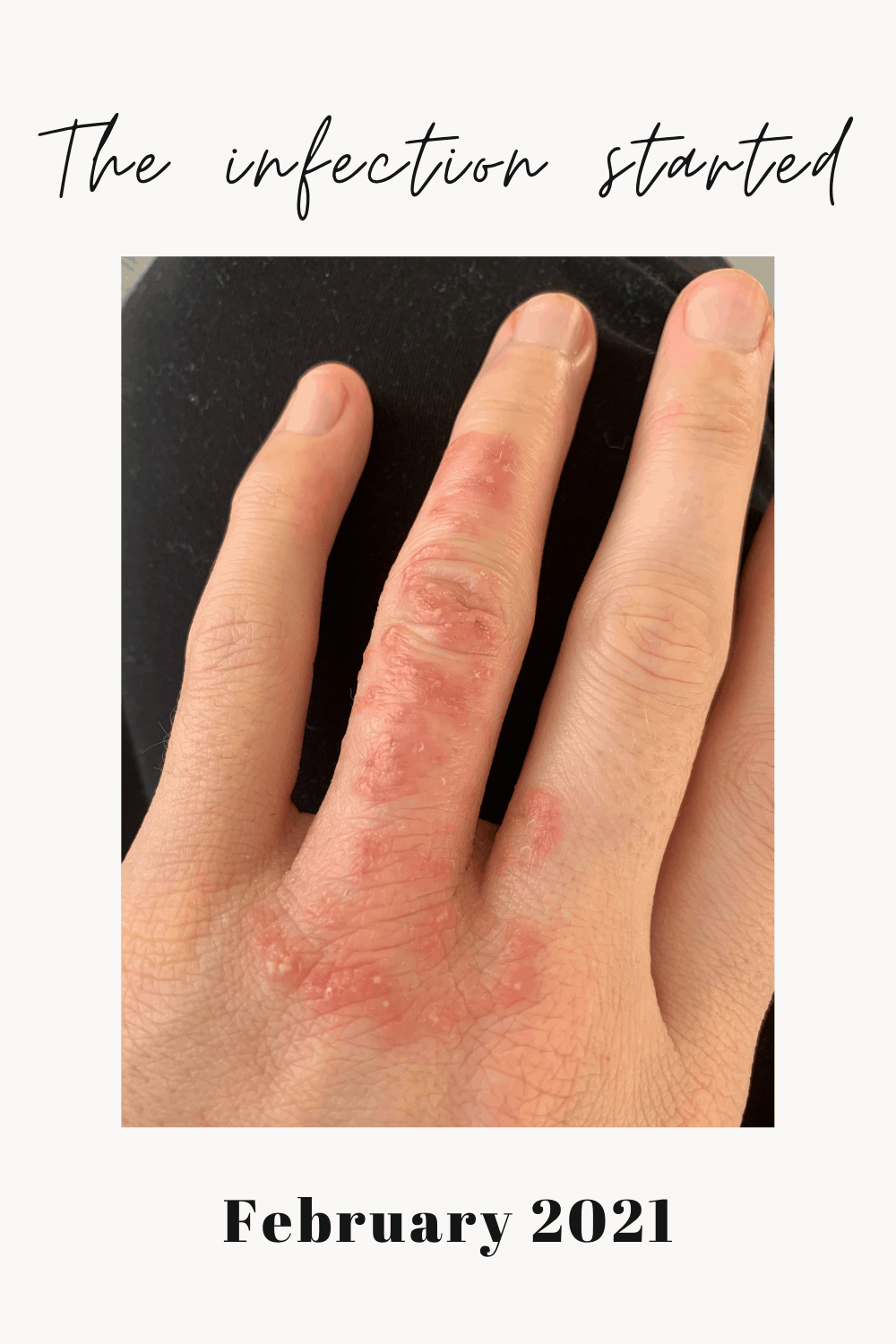 My left finger & palm with an eczema flare & bacterial infection.