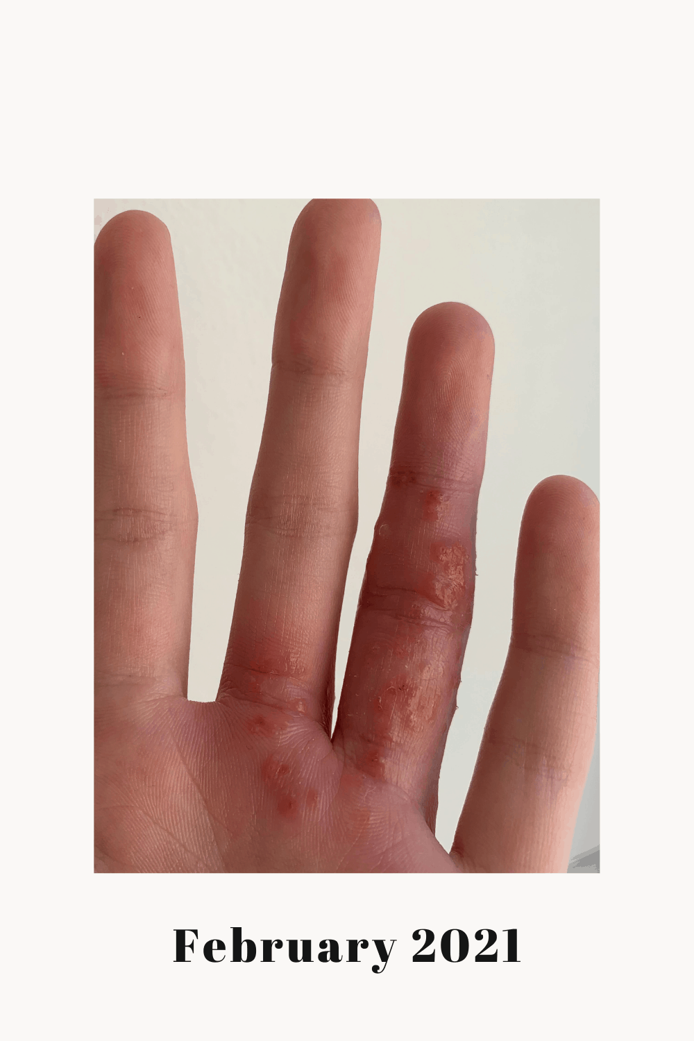 My left ring finger highly inflamed with a bacterial infection and eczema flare.