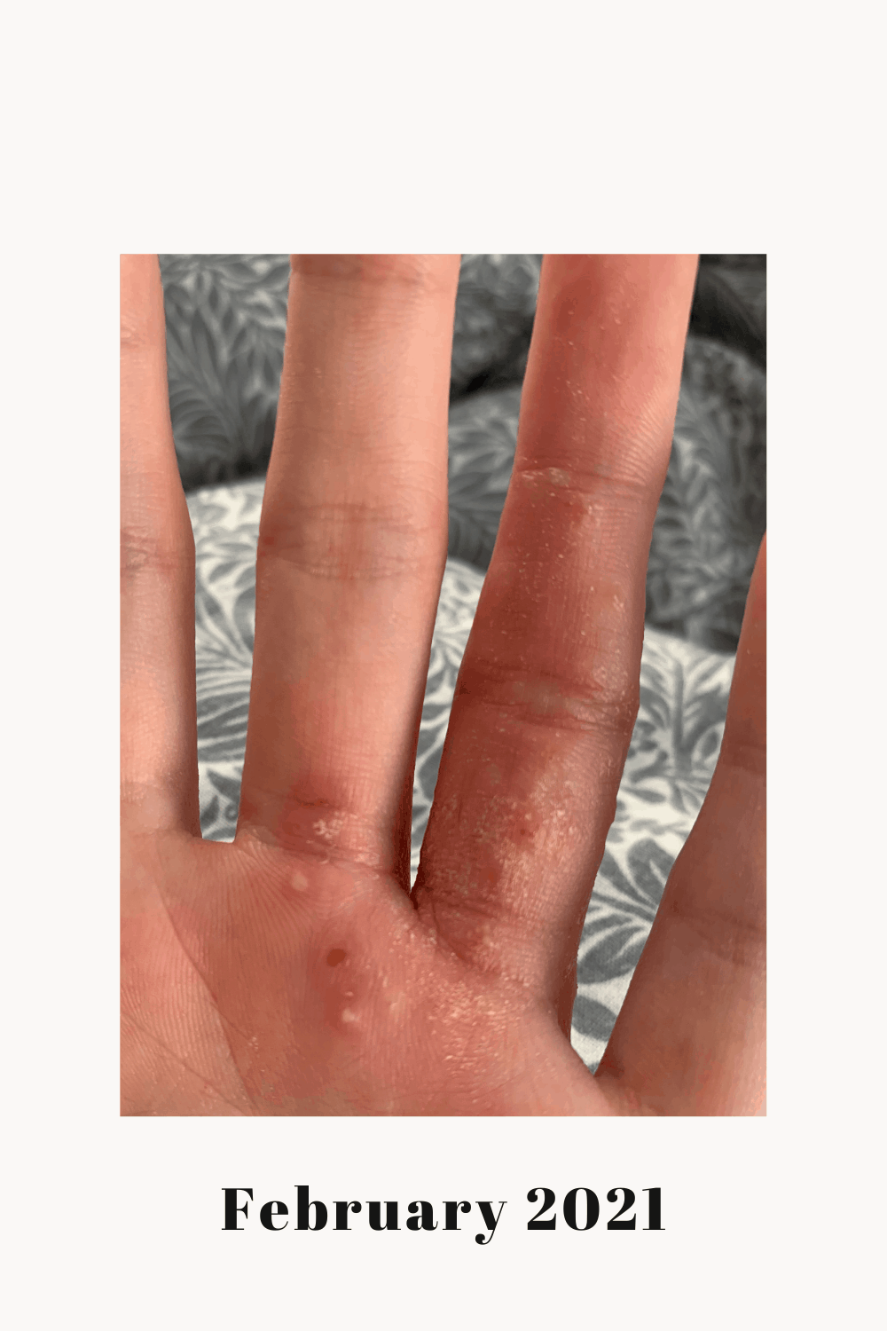 My left palm showing an eczema flare.