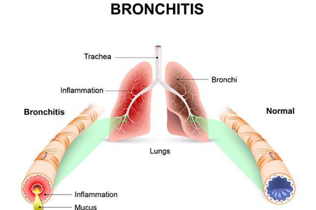 Understand Your Bronchitis
