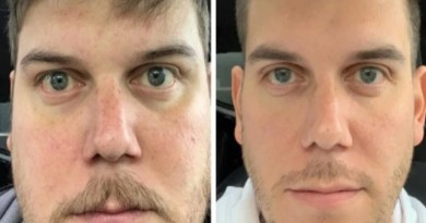 Things Happen When You Stop Drinking Alcohol for a Month