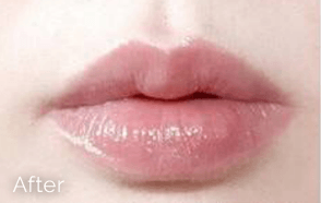 Lip Fillers in Greater Vancouver