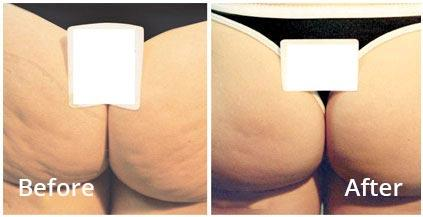 Body FX Treatments Vancouver, Burnaby & Coquitlam