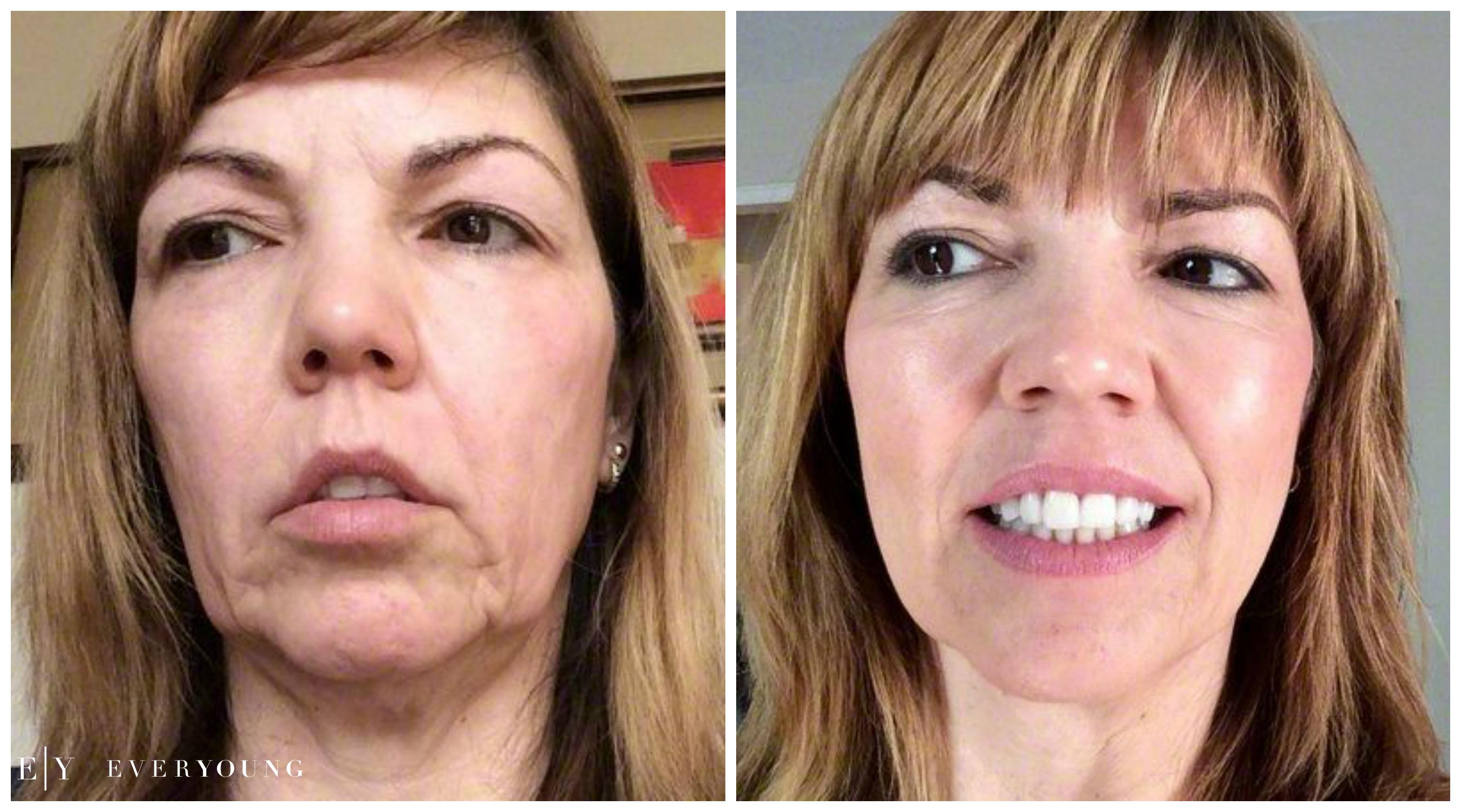PRP facial rejuvenation ever young med