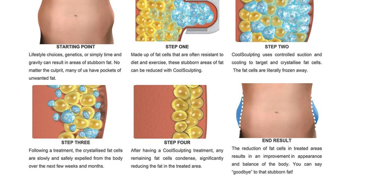 coolsculpting lose fat from permanent fat freezing and body contouring