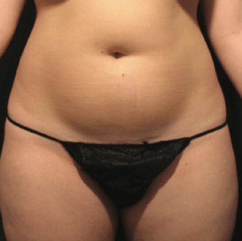velashape before and after cellulite EverYoung Port Coquitlam Medspa