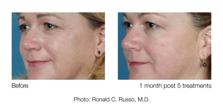 <strong>eTwo Sublime™ - skin tightening</strong>