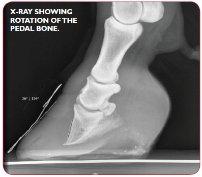 X-ray showing rotation of the pedal bone