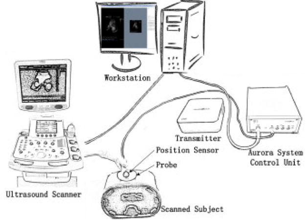 FREEHAND THREE DIMENSIONAL ULTRASOUND (US) IMAGING SYSTEM