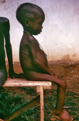 Starving girl in Biafra