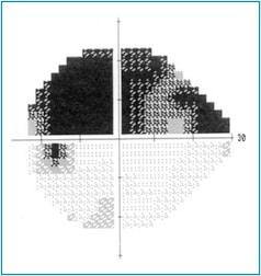 Altération du champ visuel dans le glaucome chronique à angle ouvert.