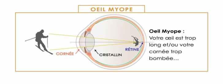 oeil myope la myopie