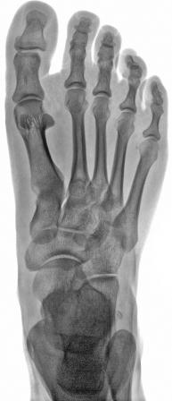 AP xr of foot