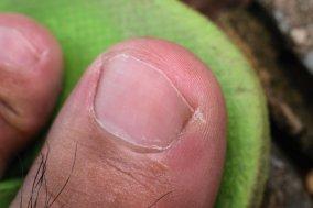 low grade ingrowing toenail