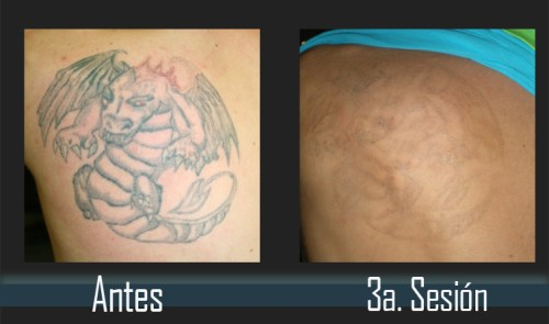 Tattoo Evolution Panama
