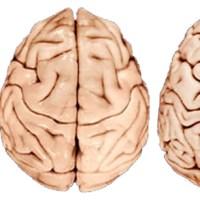 Beynin Evrimi Üzerine Düşüncelerin Tarihi
