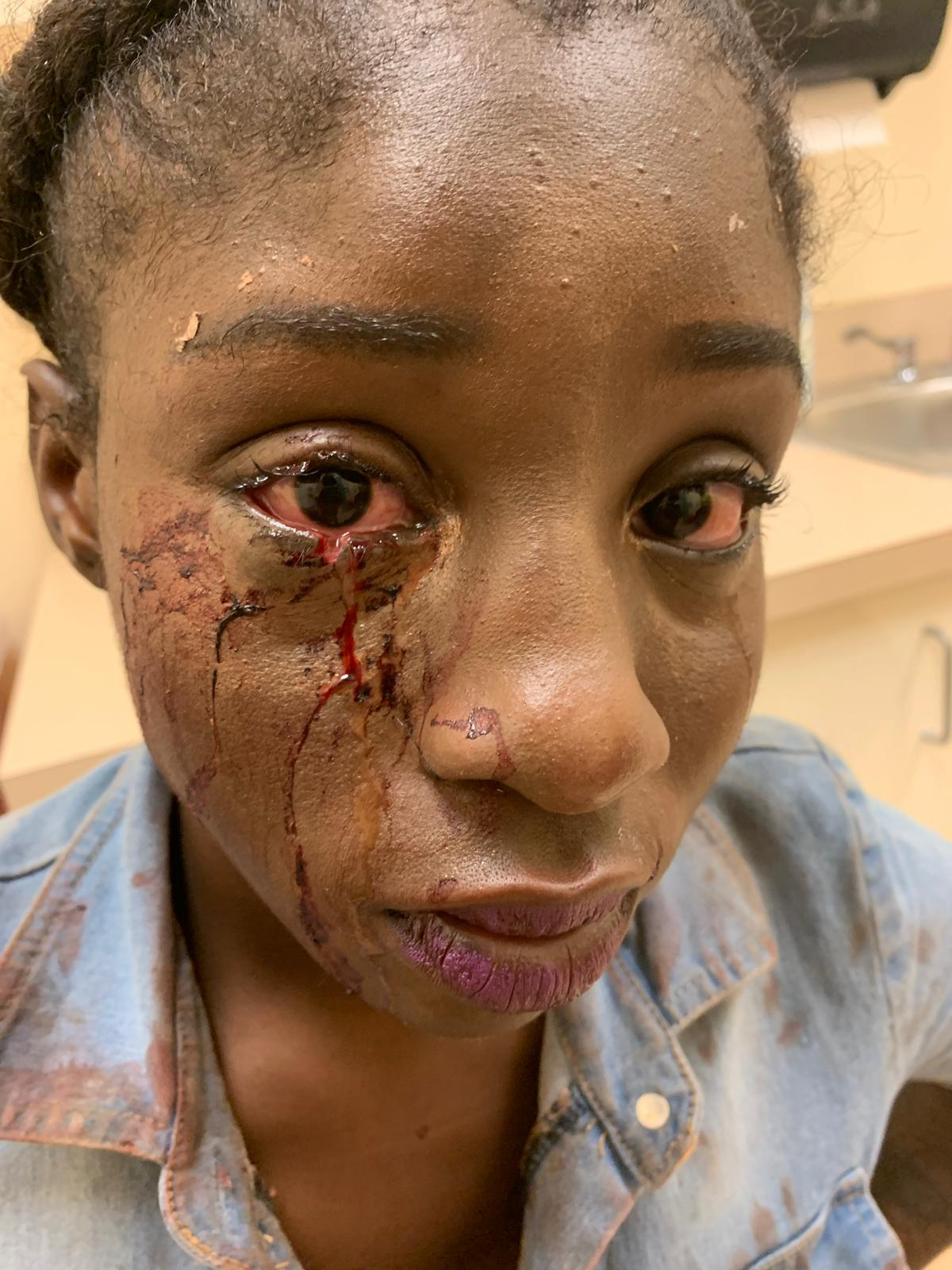 Young women allege police beat them