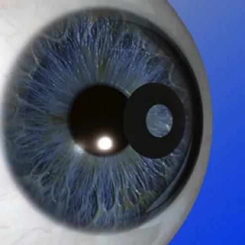 Operacion presbicia o vista cansada 2