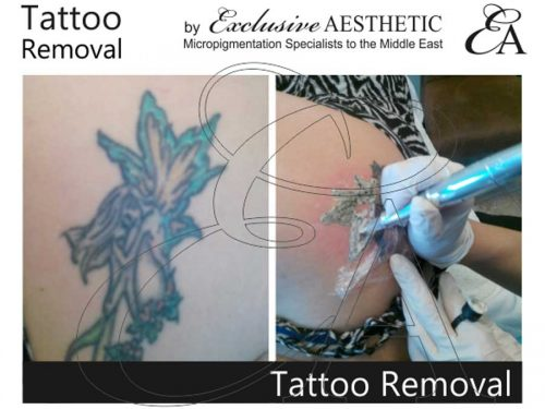 Tattoo-Removal-1