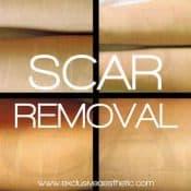 ea scar removal 500px
