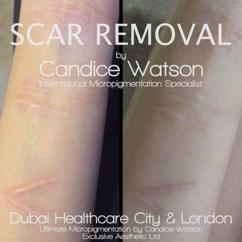 scar-removal-dubai