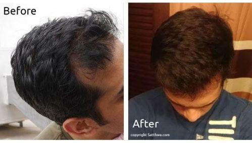 Tricologia Aromaterapia Capilar Executive Hair Academy