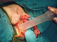 Sex transition surgery
