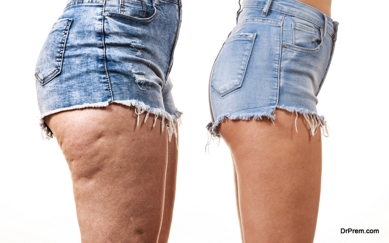Cellulite only happens to overweight people