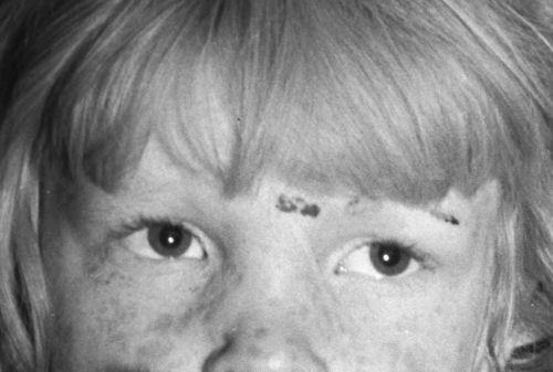 Undernourished cotton picker's child listening to speeches of organizer -- eyes