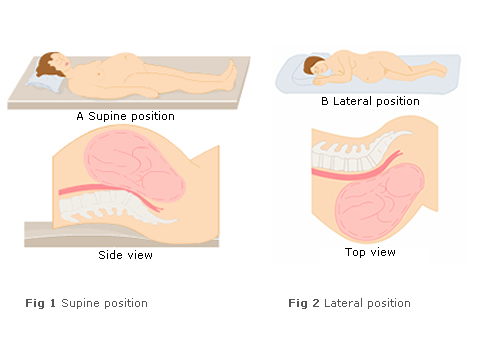 supine hypotensive syndrome has been reported as early as the second  trimester, but it is mainly a problem of late pregnancy, after 36 weeks or  so