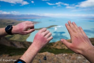 Sun burnt hands Huemul Trek 2018