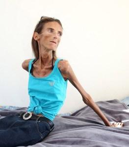 femme anorexique