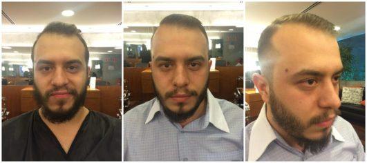 Antes e Depois Foto: ExperiMenteSP