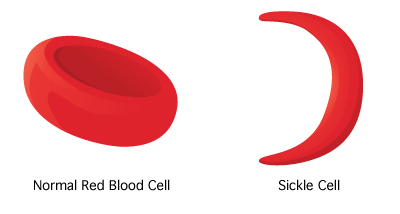 sicklecell-400x214-rd1-enil-1